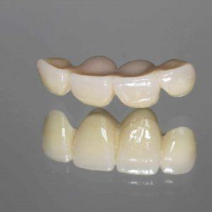 Dental Bridge shutterstock_1158605296