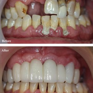 Dental Crown Before and After shutterstock_1173769558