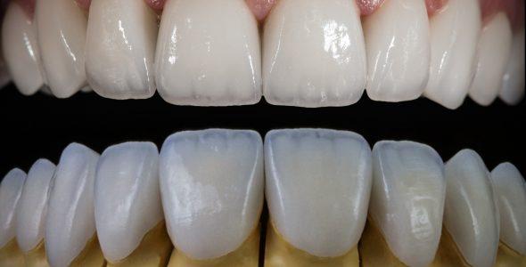 Porcelain Veneers shutterstock_1170225085